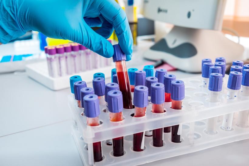 腫瘍マーカー検査:元末期ガン患者の経験
