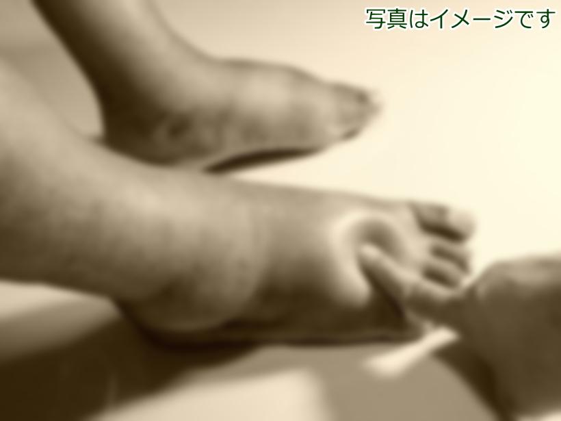 足の浮腫:元末期がん患者の経験